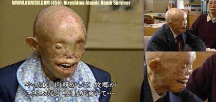 hiroshima_victime